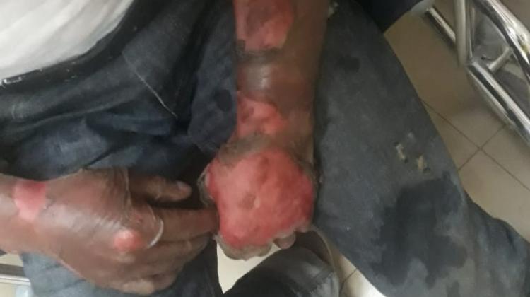 Potosí: Envían a la cárcel a mujer acusada de quemar a su esposo